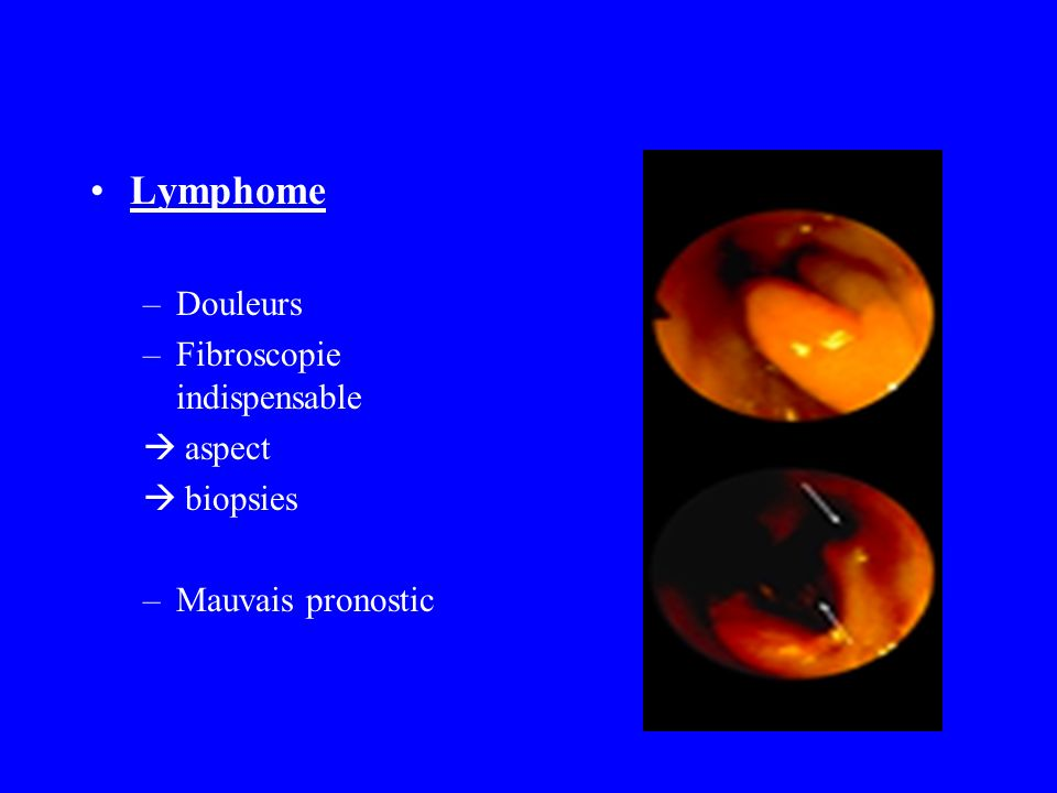 Lymphome Douleurs Fibroscopie indispensable aspect biopsies