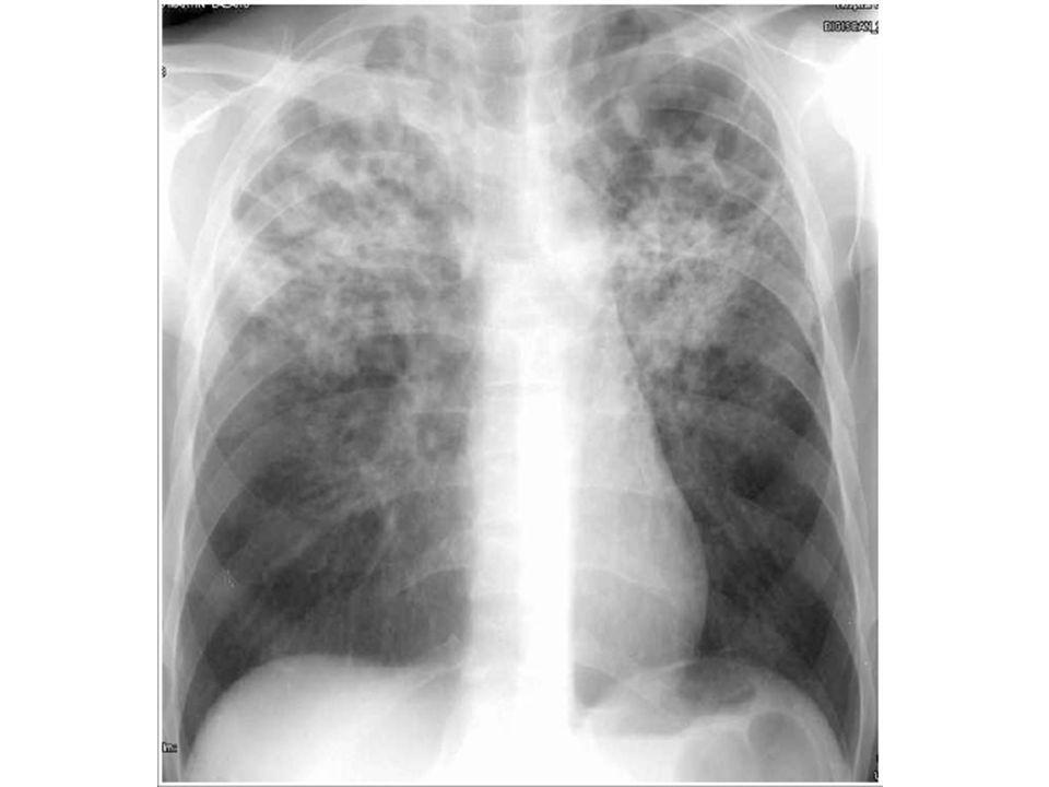 Pour mieux vous démontrer les éffets du VIH sur la TB, je vais vous rappeler de l'histoire naturelle de la TB en l'absence du VIH.