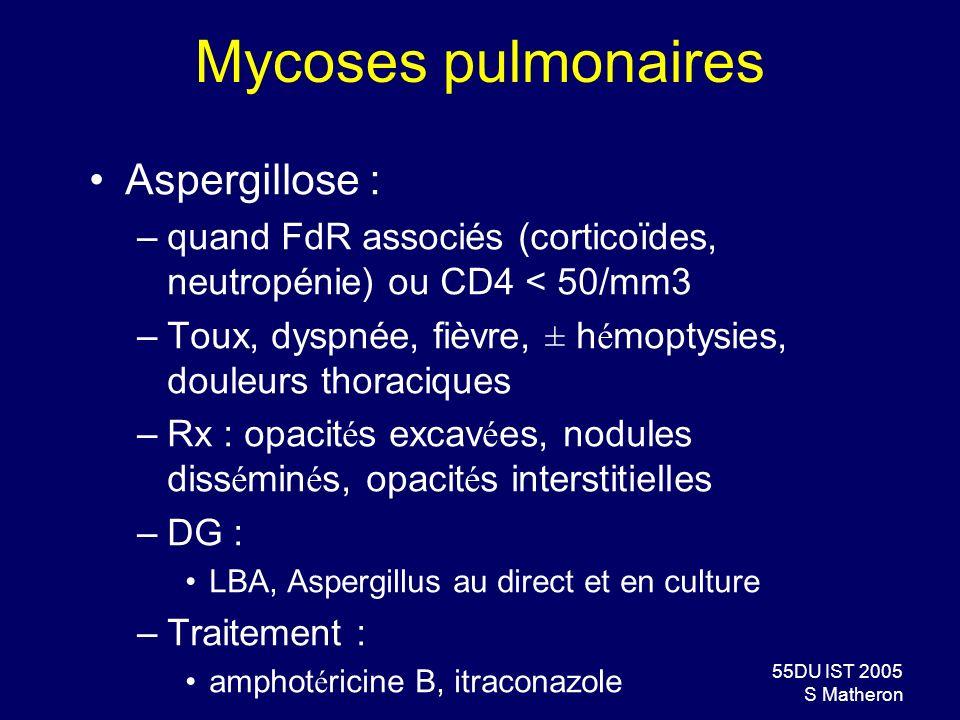 Mycoses pulmonaires Aspergillose :