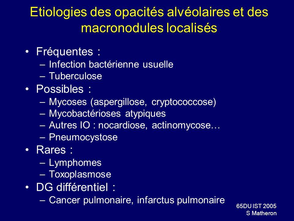 Etiologies des opacités alvéolaires et des macronodules localisés