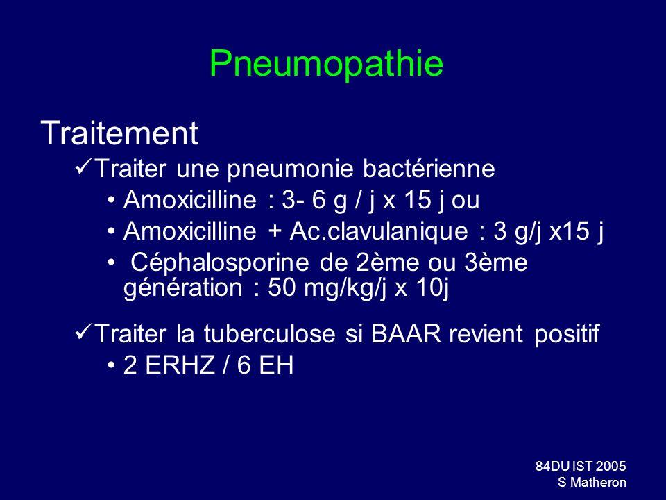 Pneumopathie Traitement Traiter une pneumonie bactérienne