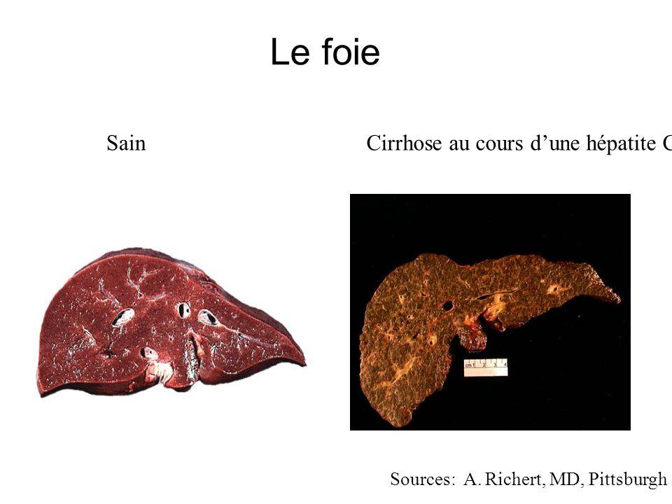 Le foie Sain Cirrhose au cours d'une hépatite C