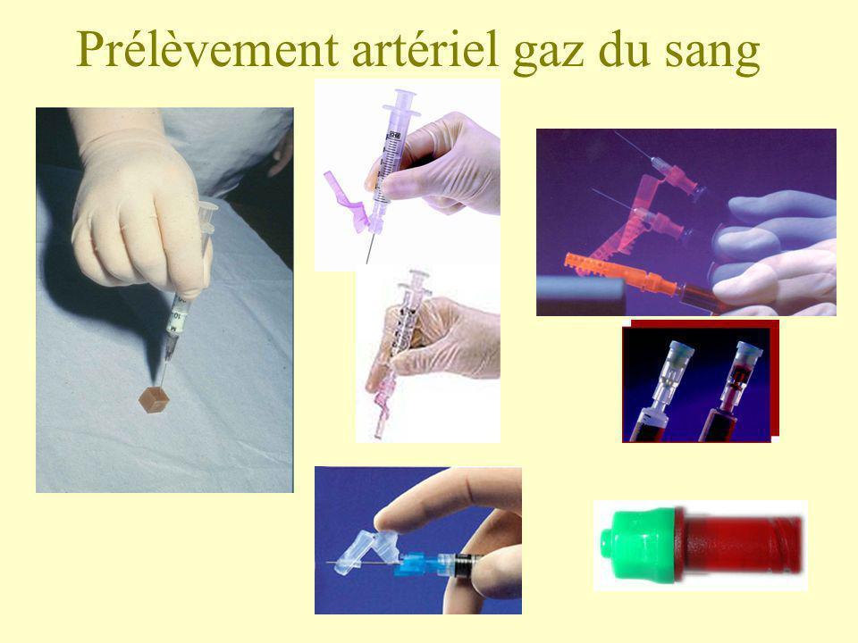 Prélèvement artériel gaz du sang