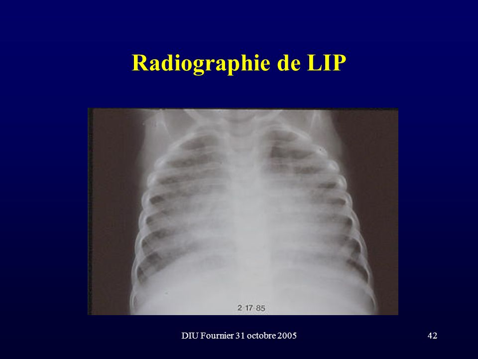 Radiographie de LIP DIU Fournier 31 octobre 2005