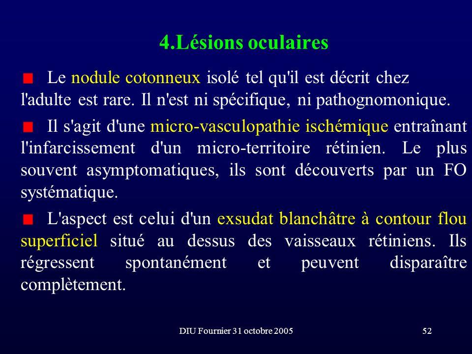 4.Lésions oculaires Le nodule cotonneux isolé tel qu il est décrit chez l adulte est rare. Il n est ni spécifique, ni pathognomonique.