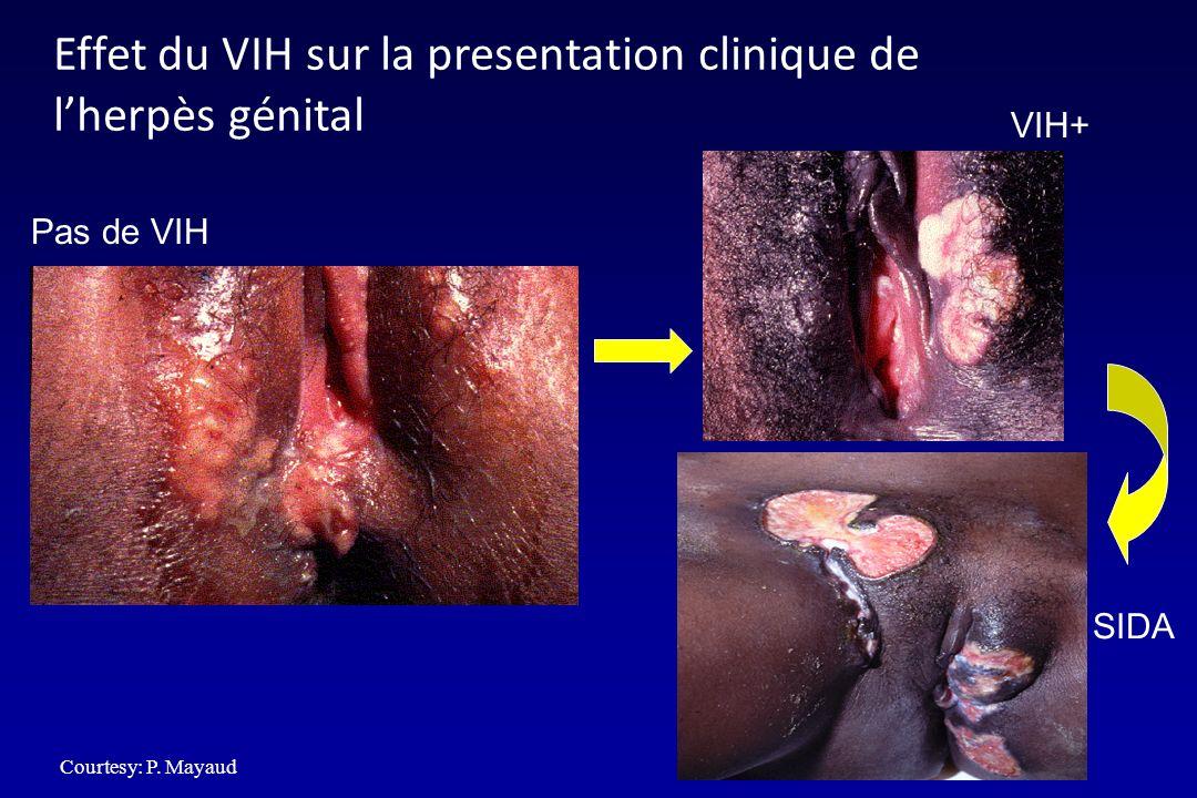 Effet du VIH sur la presentation clinique de l'herpès génital