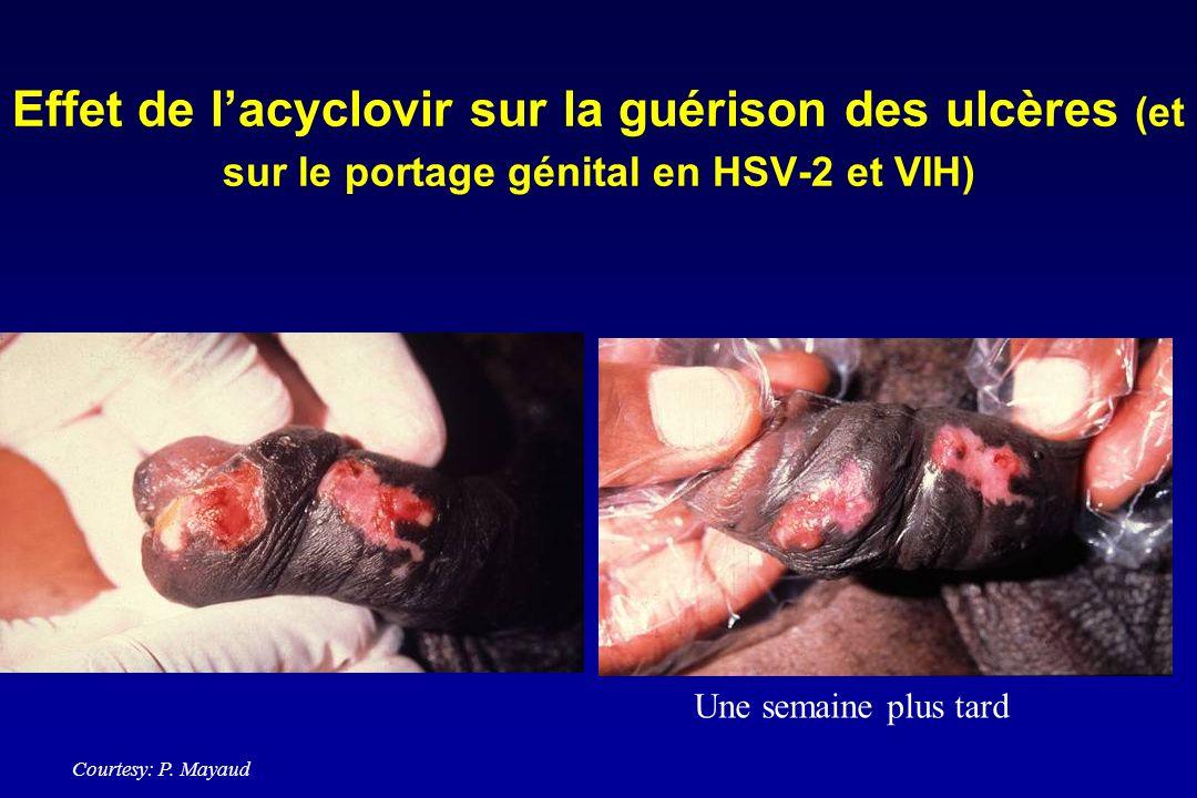 Effet de l'acyclovir sur la guérison des ulcères (et sur le portage génital en HSV-2 et VIH)