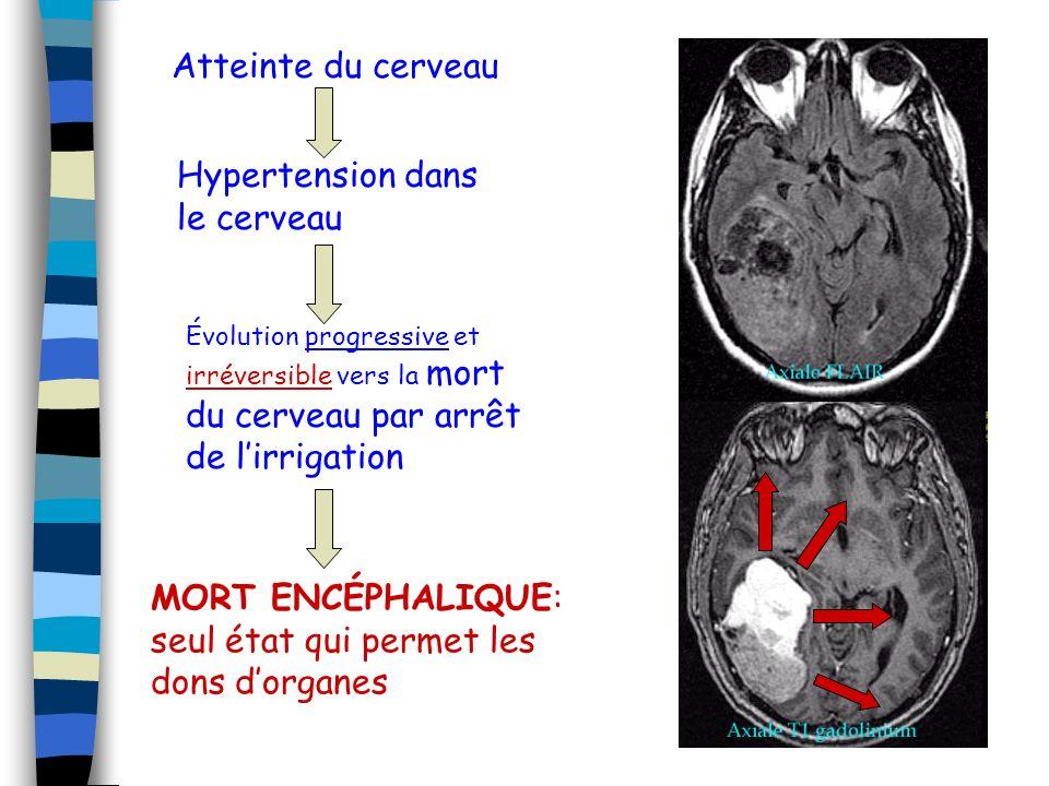 Hypertension dans le cerveau