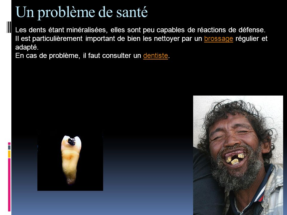 Un problème de santé Les dents étant minéralisées, elles sont peu capables de réactions de défense.