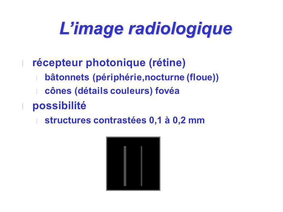 L'image radiologique récepteur photonique (rétine) possibilité