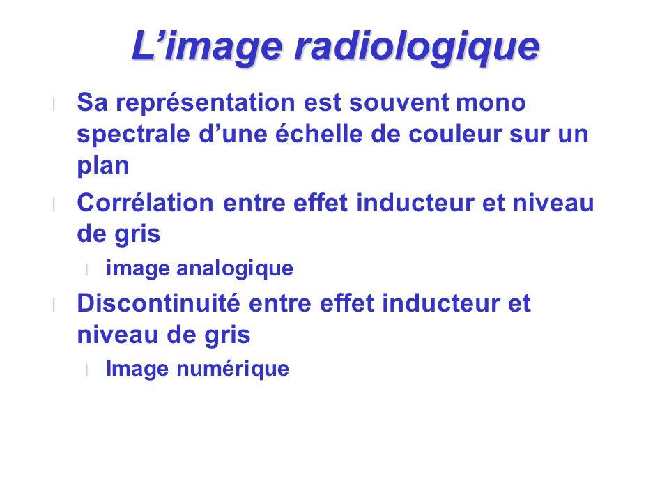 L'image radiologique Sa représentation est souvent mono spectrale d'une échelle de couleur sur un plan.