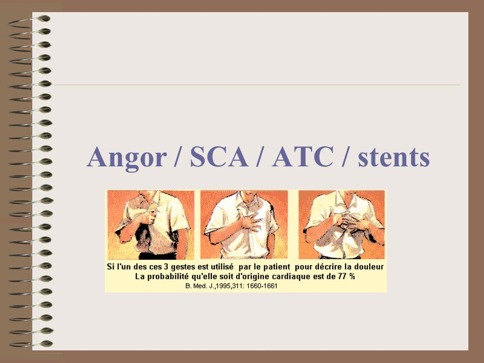 Angor / SCA / ATC / stents