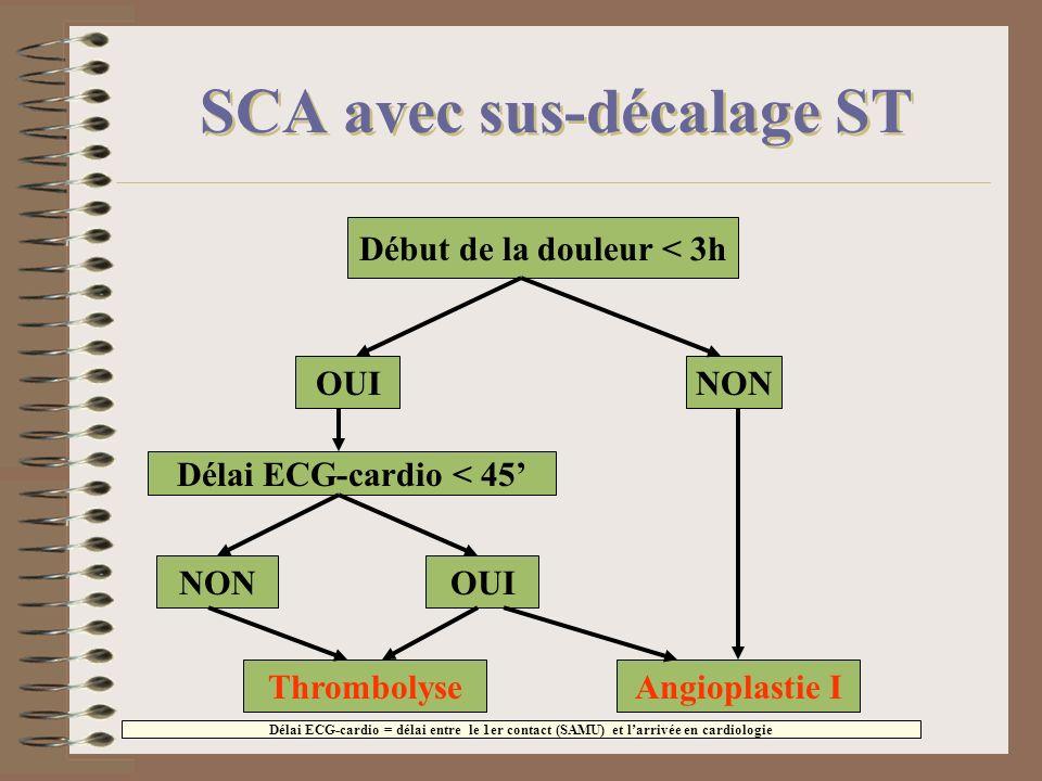 SCA avec sus-décalage ST