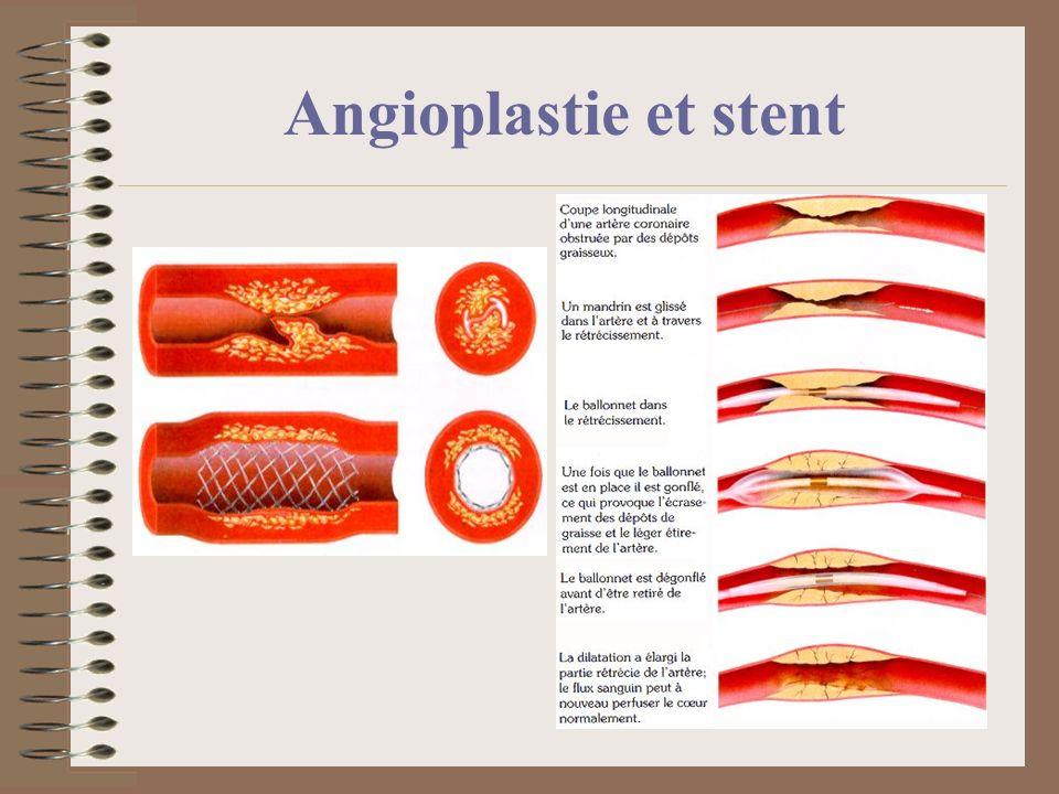 Angioplastie et stent