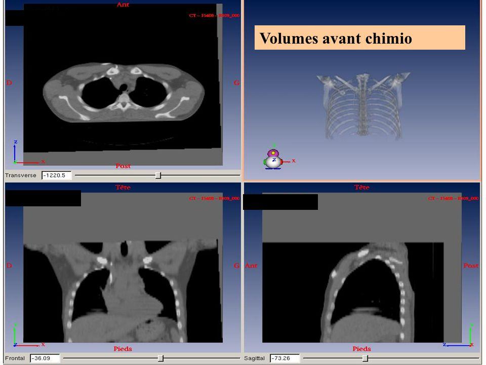 Volumes avant chimio 2010 Dr Juliette THARIAT