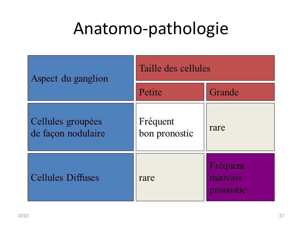 Anatomo-pathologie Aspect du ganglion Taille des cellules Petite