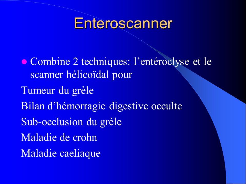 Enteroscanner Combine 2 techniques: l'entéroclyse et le scanner hélicoïdal pour. Tumeur du grèle. Bilan d'hémorragie digestive occulte.