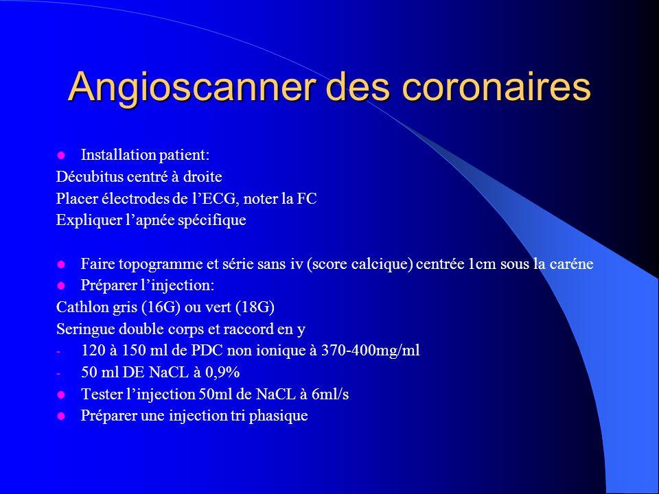 Angioscanner des coronaires