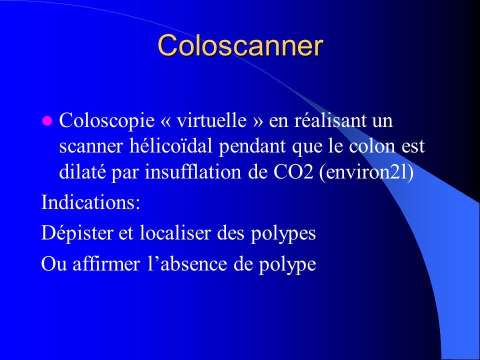 ColoscannerColoscopie « virtuelle » en réalisant un scanner hélicoïdal pendant que le colon est dilaté par insufflation de CO2 (environ2l)