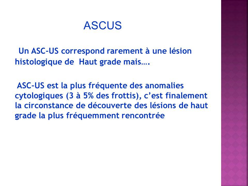 ASCUS Un ASC-US correspond rarement à une lésion histologique de Haut grade mais….