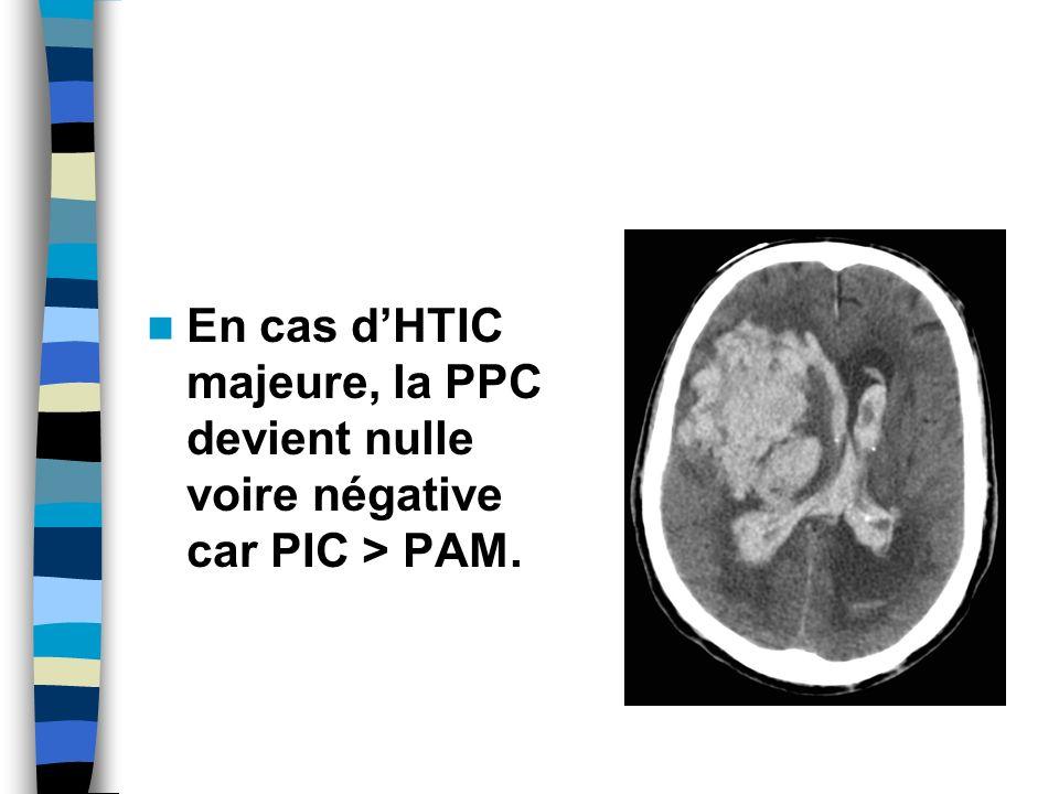 En cas d'HTIC majeure, la PPC devient nulle voire négative car PIC > PAM.