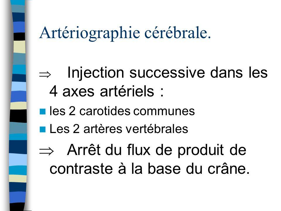 Artériographie cérébrale.