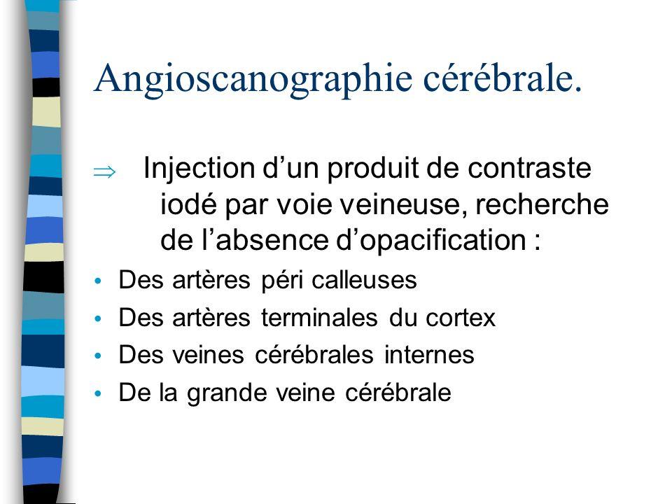 Angioscanographie cérébrale.