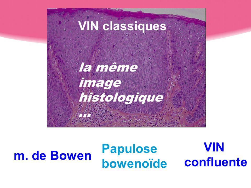 VIN classiques la même image histologique … Papulose bowenoïde VIN confluente m. de Bowen
