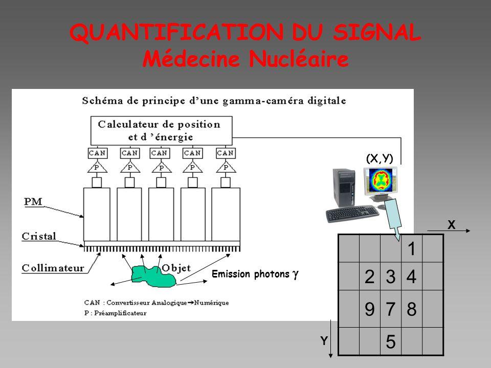 QUANTIFICATION DU SIGNAL Médecine Nucléaire