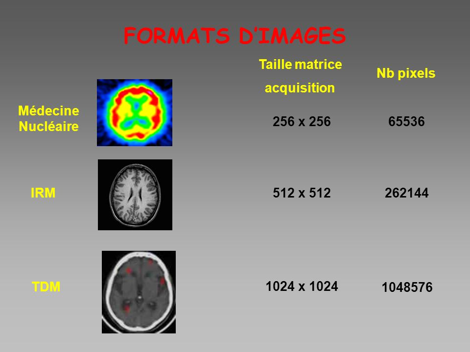 FORMATS D'IMAGES Taille matrice acquisition Nb pixels