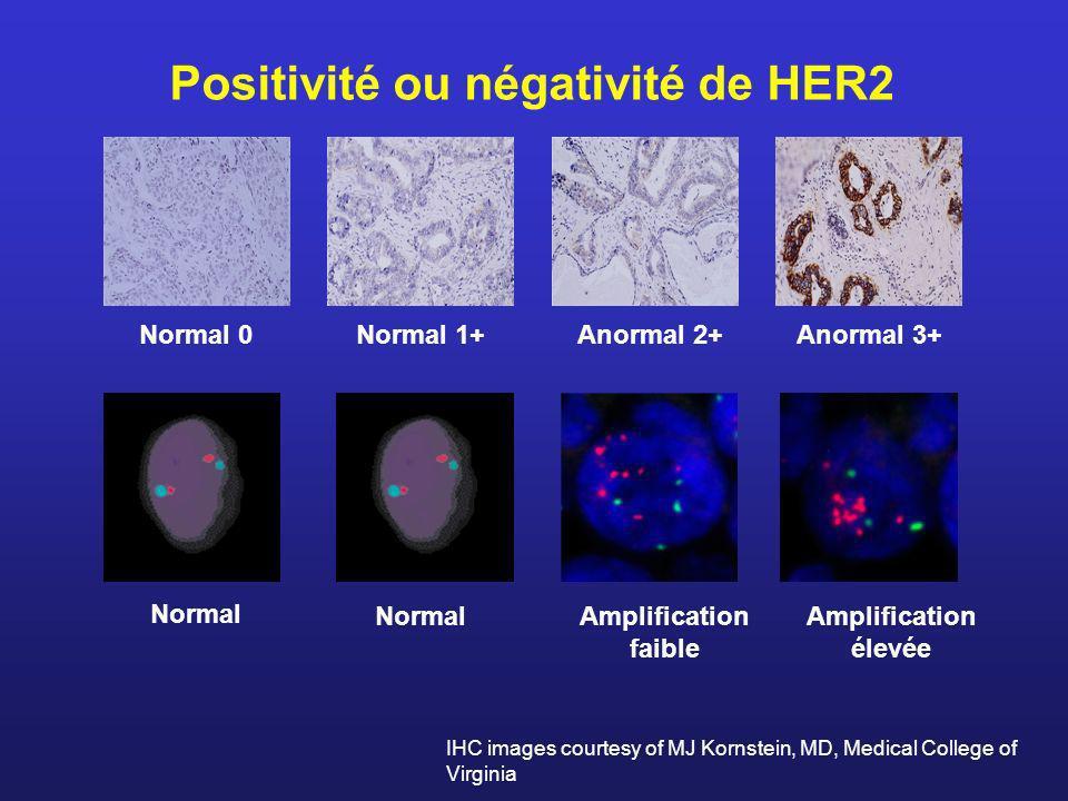 Positivité ou négativité de HER2