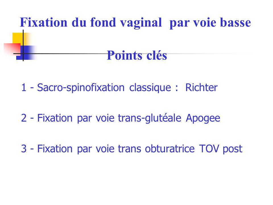 Fixation du fond vaginal par voie basse