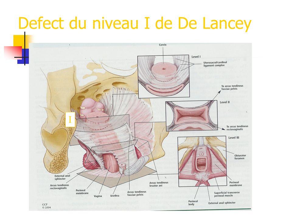Defect du niveau I de De Lancey