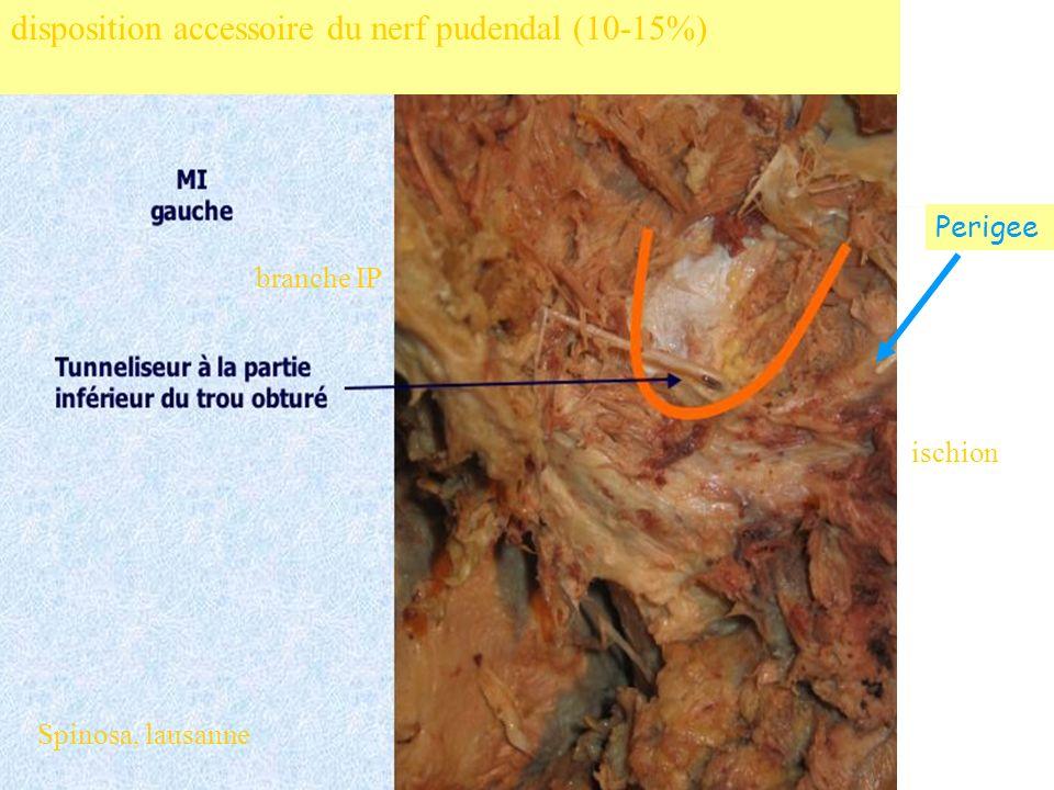 disposition accessoire du nerf pudendal (10-15%)