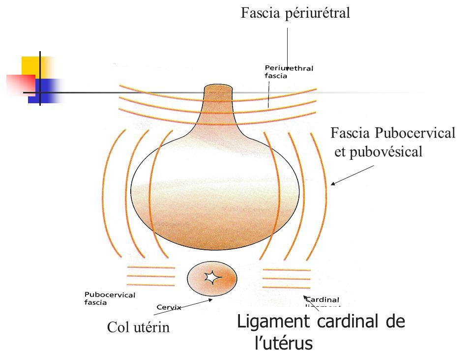 Ligament cardinal de l'utérus