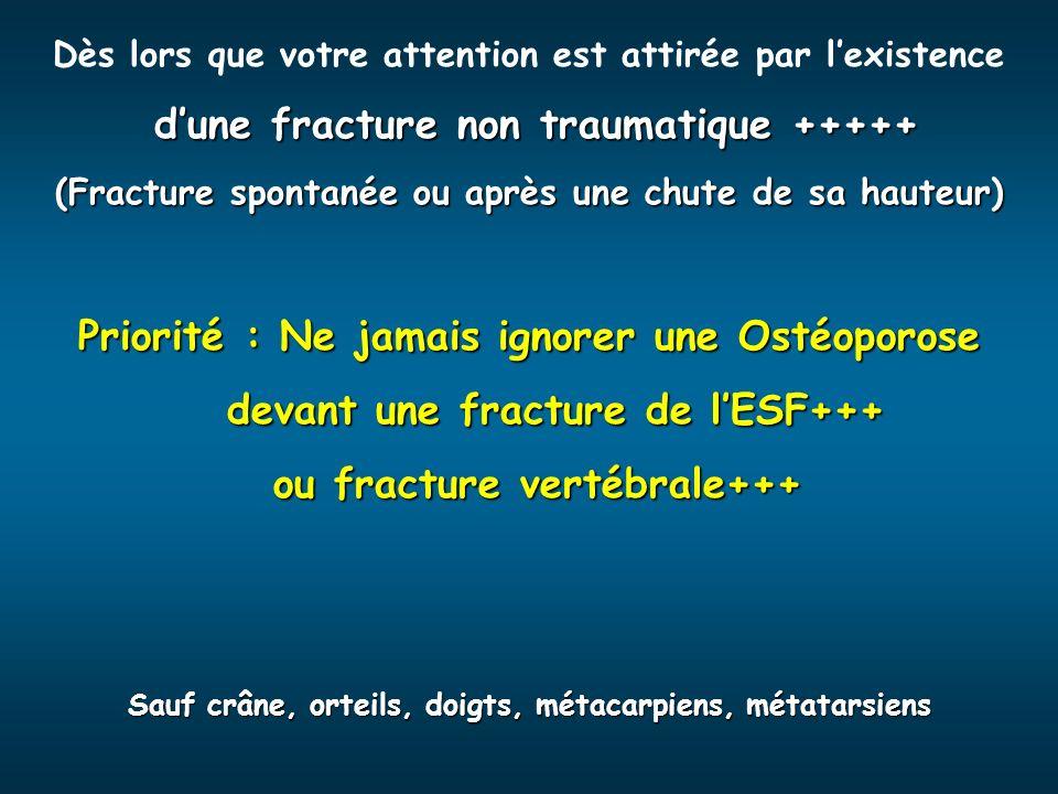 ou fracture vertébrale+++