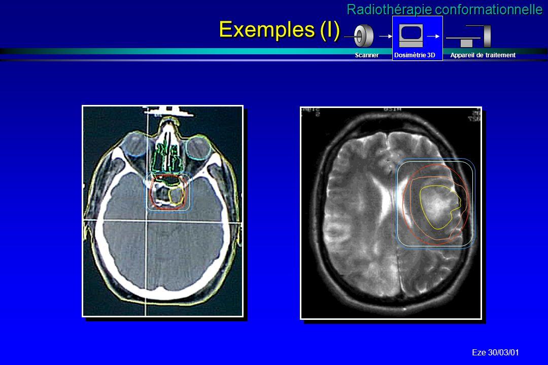 Exemples (I) Radiothérapie conformationnelle Scanner Dosimètrie 3D