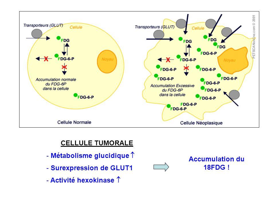 CELLULE TUMORALE Métabolisme glucidique  Surexpression de GLUT1.