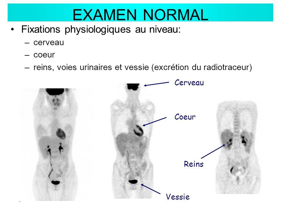 EXAMEN NORMAL Fixations physiologiques au niveau: cerveau coeur
