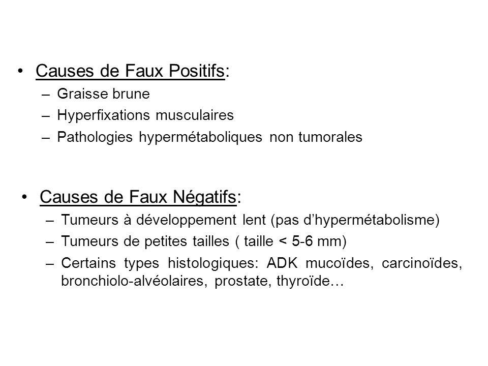 Causes de Faux Positifs: