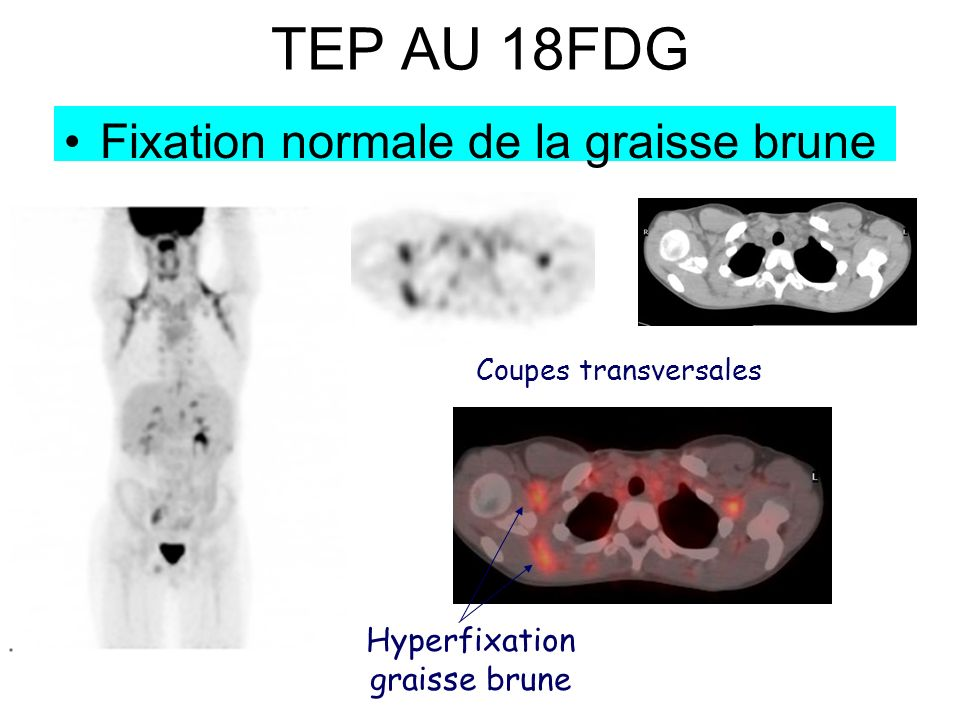 Hyperfixation graisse brune