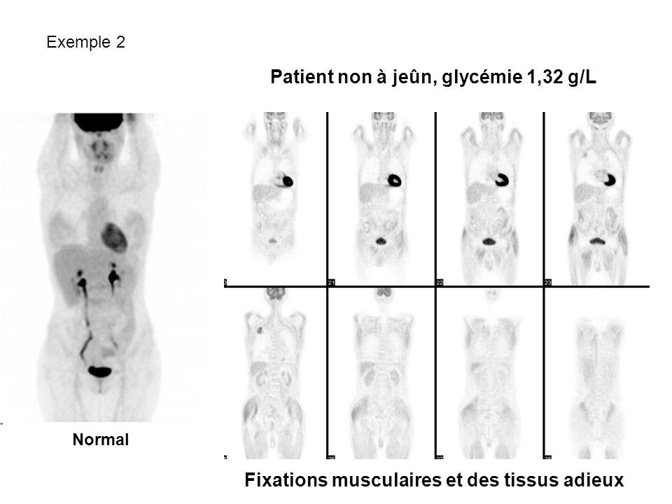 Fixations musculaires et des tissus adieux