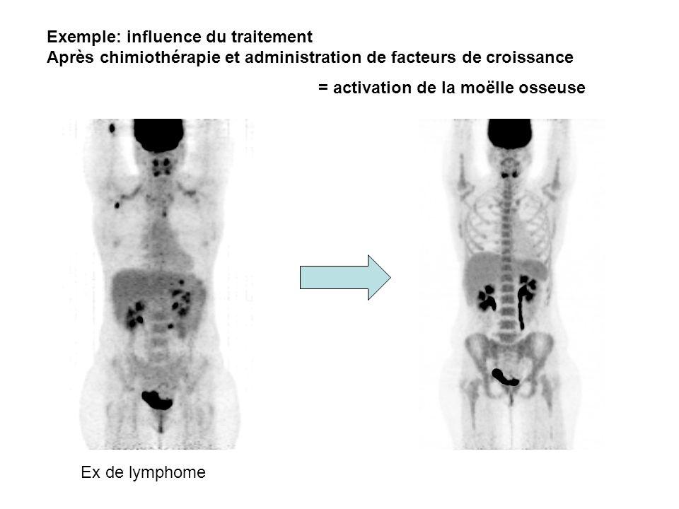 Exemple: influence du traitement Après chimiothérapie et administration de facteurs de croissance