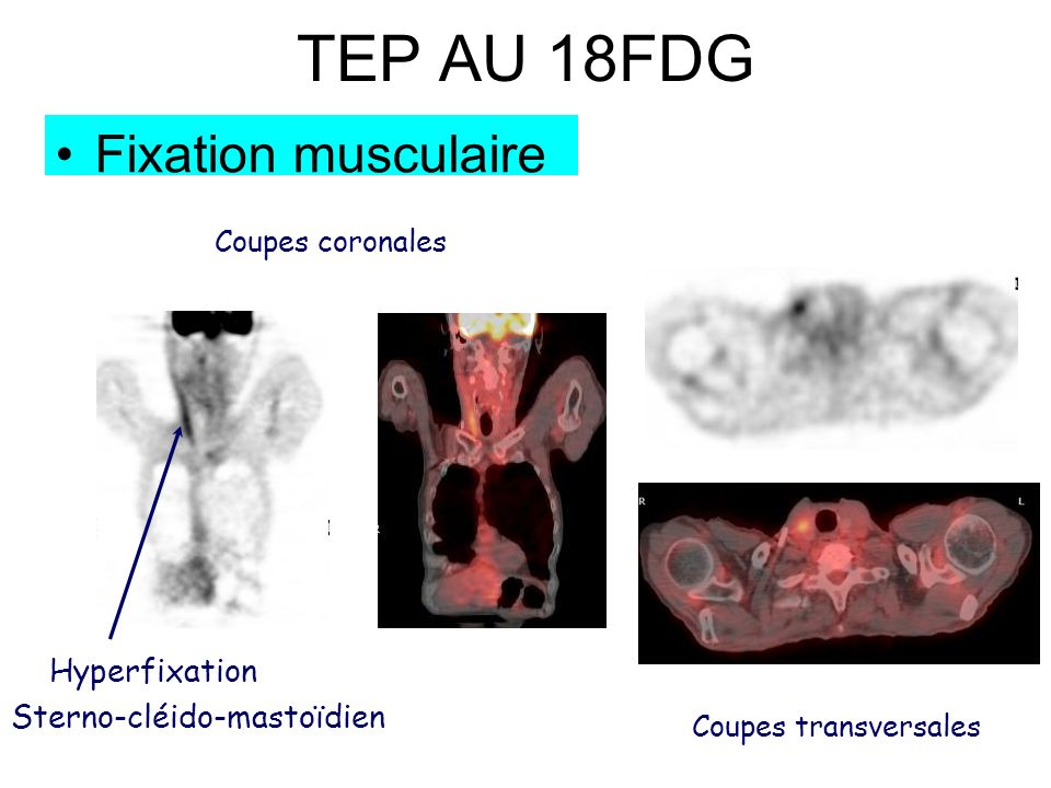 TEP AU 18FDG Fixation musculaire Hyperfixation