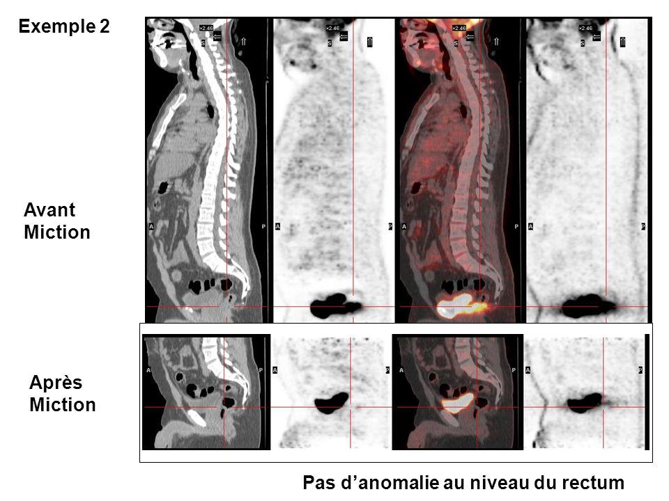 Exemple 2 Avant Miction Après Miction Pas d'anomalie au niveau du rectum
