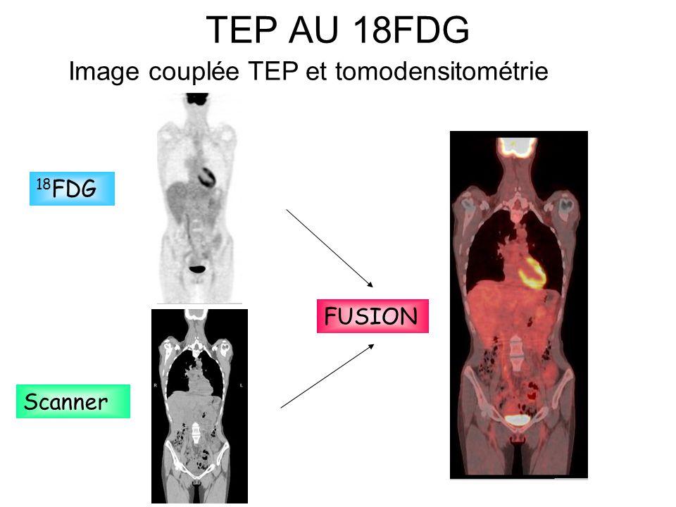 TEP AU 18FDG Image couplée TEP et tomodensitométrie 18FDG FUSION
