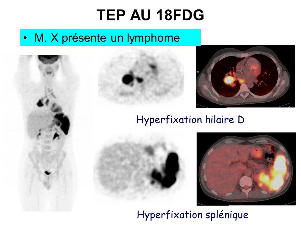 TEP AU 18FDG M. X présente un lymphome Hyperfixation hilaire D