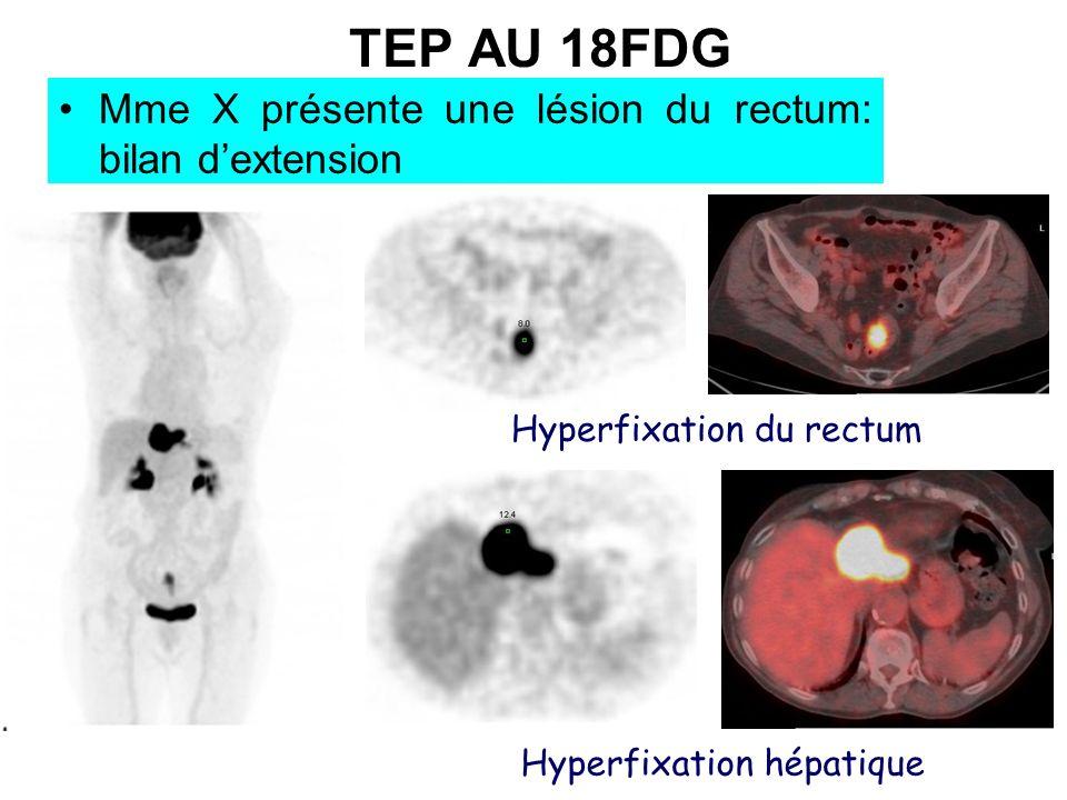 TEP AU 18FDG Mme X présente une lésion du rectum: bilan d'extension