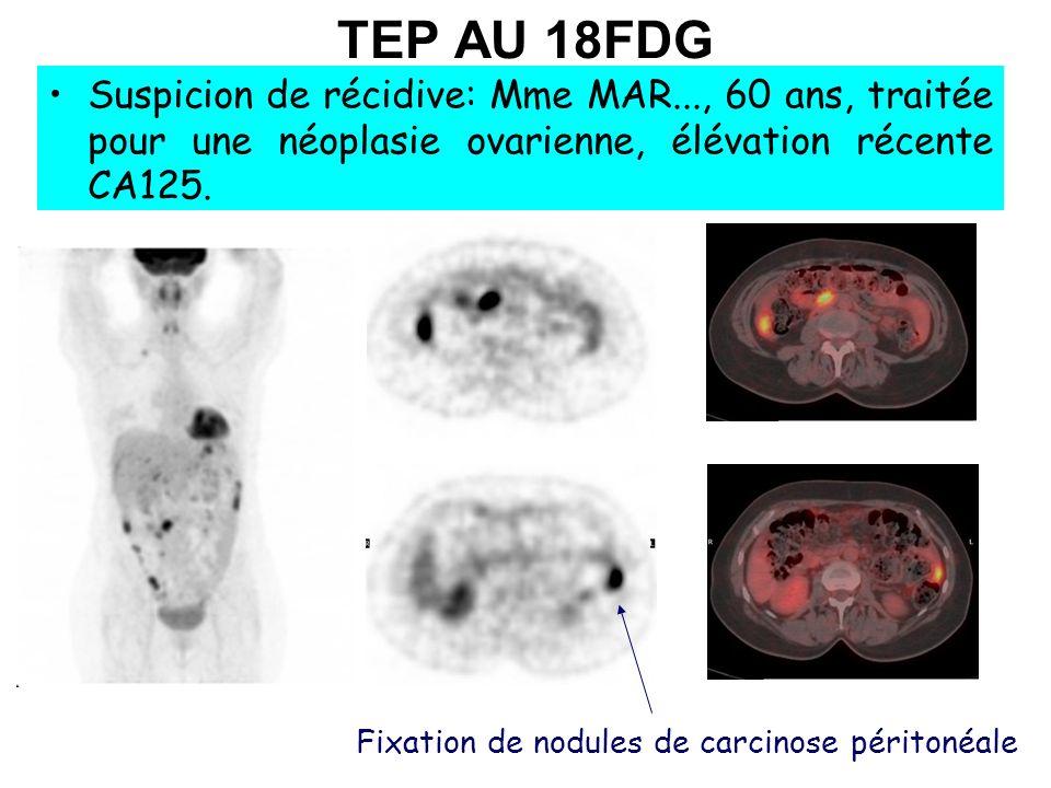 TEP AU 18FDG Suspicion de récidive: Mme MAR..., 60 ans, traitée pour une néoplasie ovarienne, élévation récente CA125.