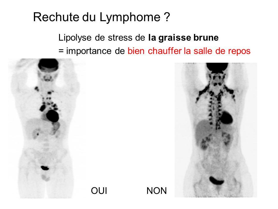 Rechute du Lymphome Lipolyse de stress de la graisse brune